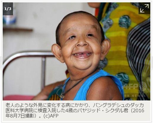 ウェルナー症候群?? □ 4歳児が老人に? バングラデシュの奇病、医師らが原因究明へ, AFPBB News, 2016年08月10日,  ダッカ/バングラデシュ より